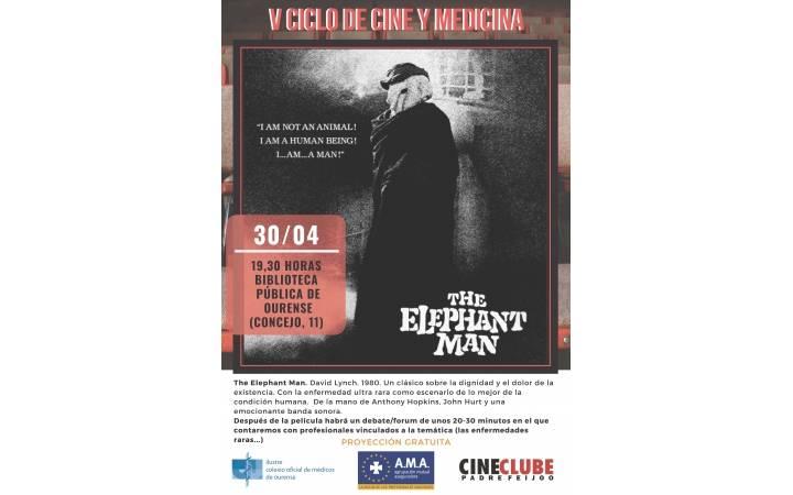 """V Ciclo de Cine y Medicina: """"El hombre elefante"""""""